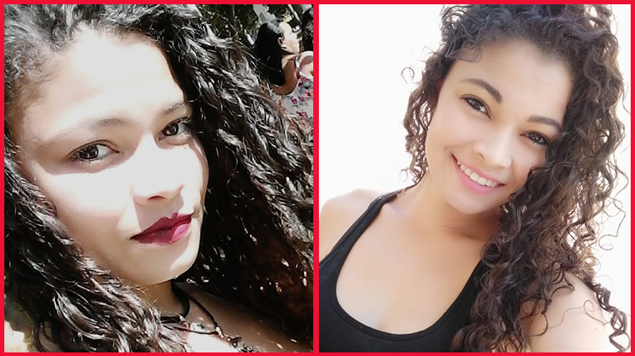 Antes e depois Renata - Minoxidil para sobrancelhas