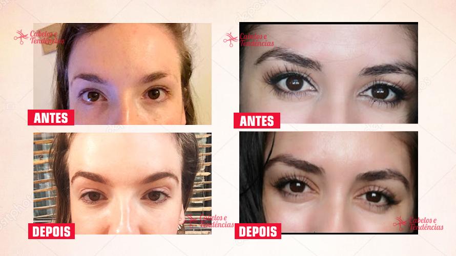 Minoxidil pra sobrancelhas - Antes e depois